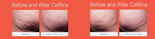 Before & After cellulite treatment Sacramento