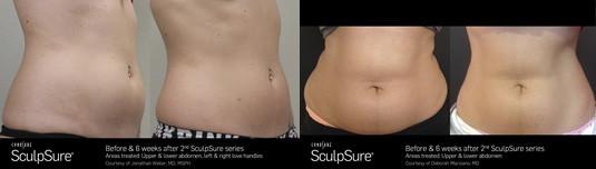 SculpSure body contouring Sacramento