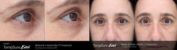Sacramento TempSure wrinkle & fine line treatment