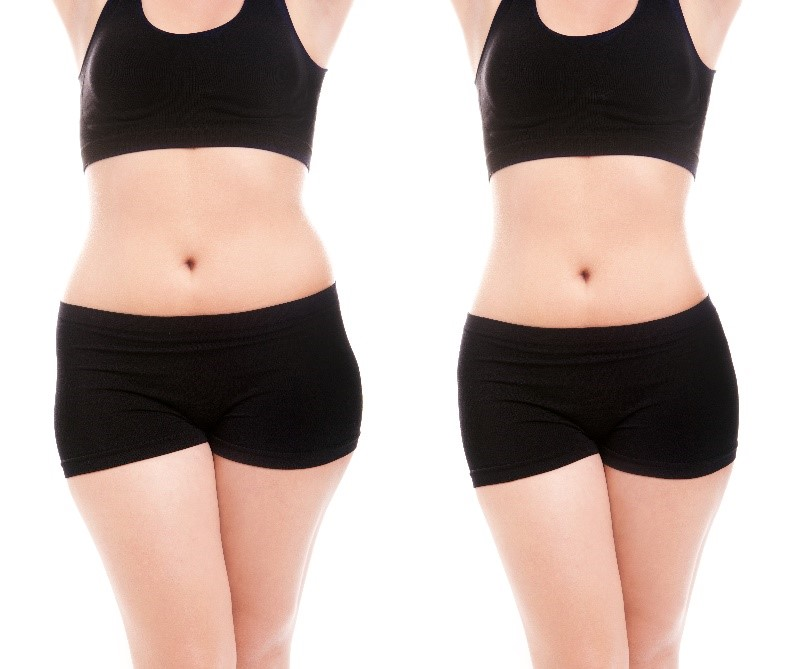 VASER Liposuction Results available for the Bay Area
