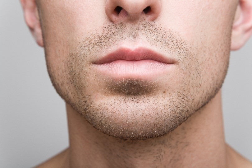 Male Chin Augmentation available for the Bay Area