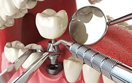 Dental Implants in Shreveport, LA