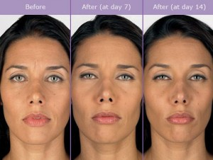 Botox Effects on Patient