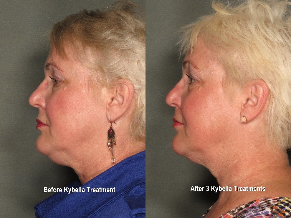 Kybella Double Chin Reduction Results