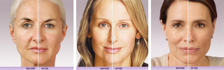 Before & After Juvederm filler in Portland