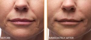 Portland facial injectables patient
