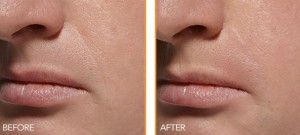 Patient before and after dermal fillers in Portland