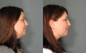 Chin Lipo & Neck Liposuction Portland