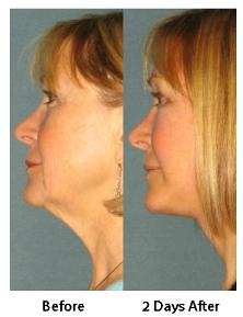Before & After Rapid Recovery Face Lift Portland