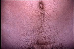 Ulcerative Colitis Treatment Reno