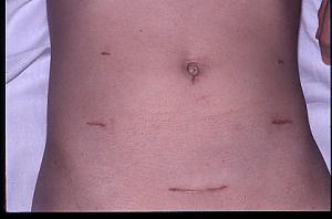 Crohn's Disease Treatment Reno