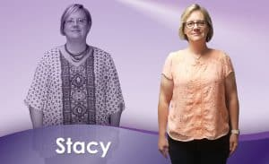 Before and After Weight Loss Stacy
