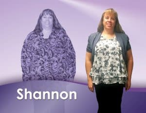 Before and After Weight Loss Shannon
