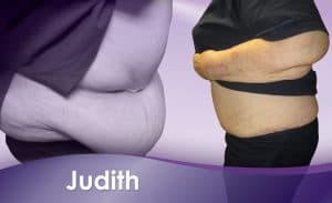 Before and After Weight Loss Judith