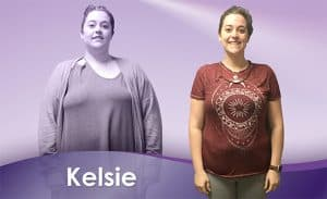 Before and After Weight Loss Kelsie
