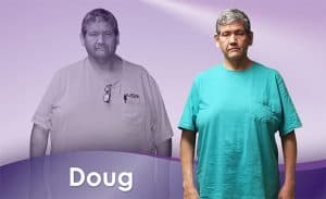 Before and After Weight Loss Doug