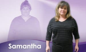 Before and After Weight Loss Samantha