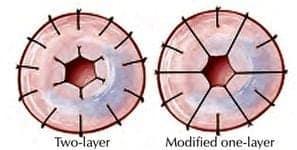 Vasovasostomy Techniques