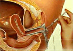 Intrauterine Insemination (IUI) Process