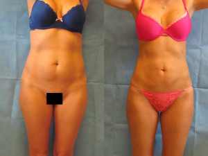 Liposuction in Tampa