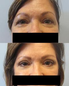 Eyelid Surgery Tampa