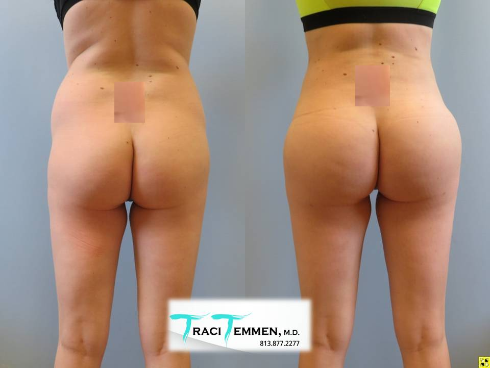 gluteal implants butt implants tampa