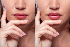 Lip lift surgery in Tampa, FL