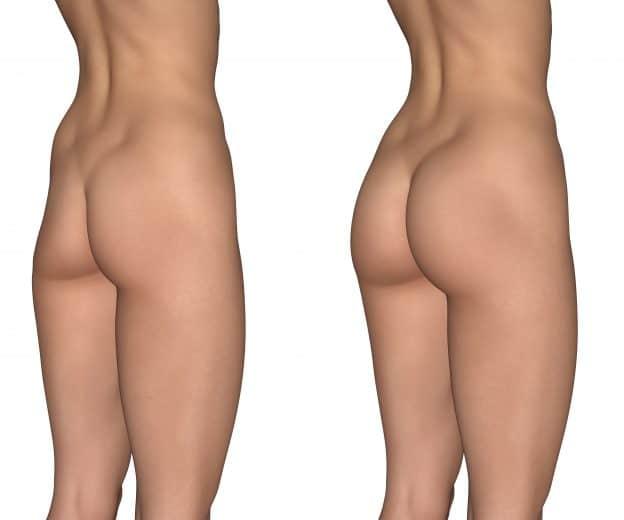 Can a BBL fix my hip dips?