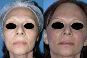 skin resurfacing surgeon san diego