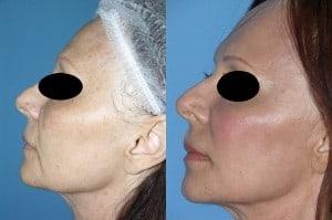 laser skin resurfacing expert san diego