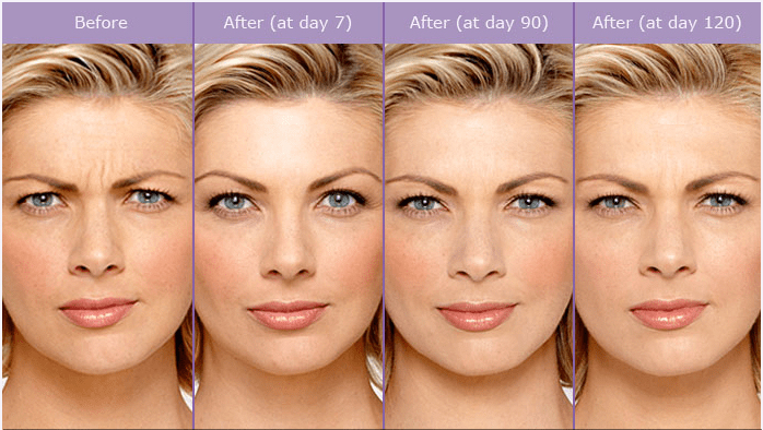 botox injections la jolla