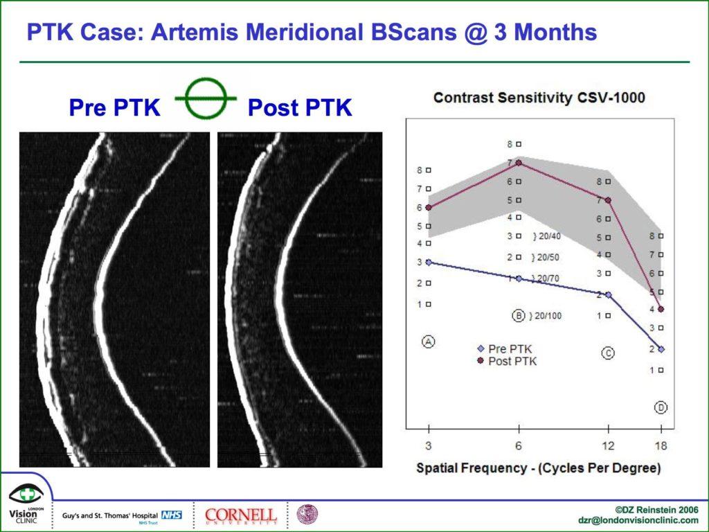 Artemis meridional BScans