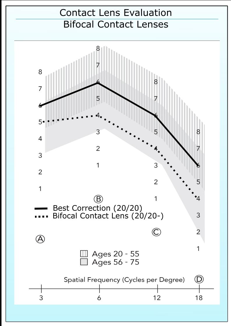 Bifocal Contact Lens