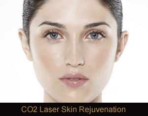 CO2 Laser Resurfacing Treatment in Novi, MI