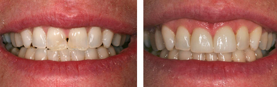 Dental patient before after Images