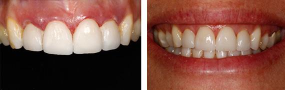 Dental Restoration photos in Countryside and La Grange, IL