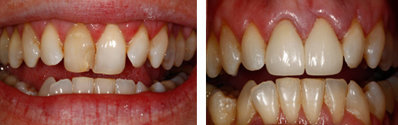 Dental patient photos in Countryside, IL