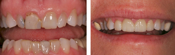 Before After photos of Dental Patient