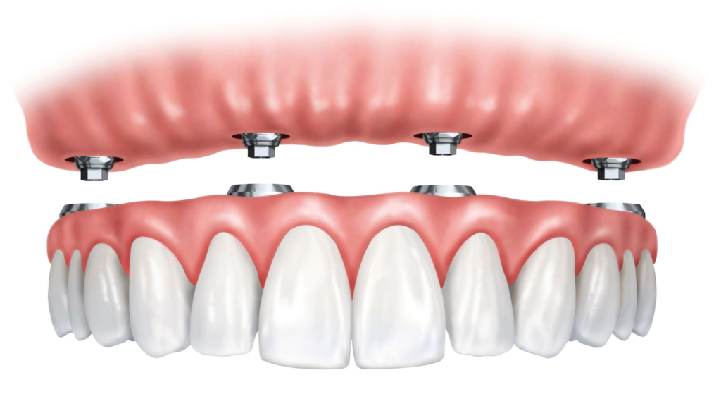 Dental Implants in Countryside, IL